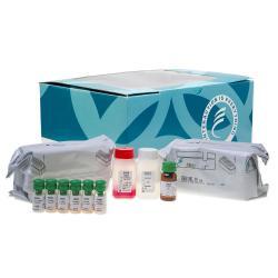 Angiotensin I radioimmunoassay kit